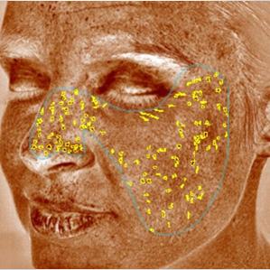 Visia | DrDerm Equipment - Kezelőgépek a bőrgyógyász szakértelmével